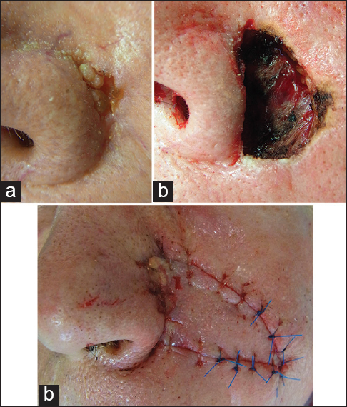 Figure 4: Para-alar island pedicle flap. (a) Basal cell carcinoma of the lateral ala. (b) Primary defect after slow Mohs. (c) Defect closure by island pedicle flap