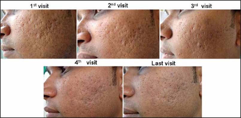 Split face comparative study of microneedling with PRP