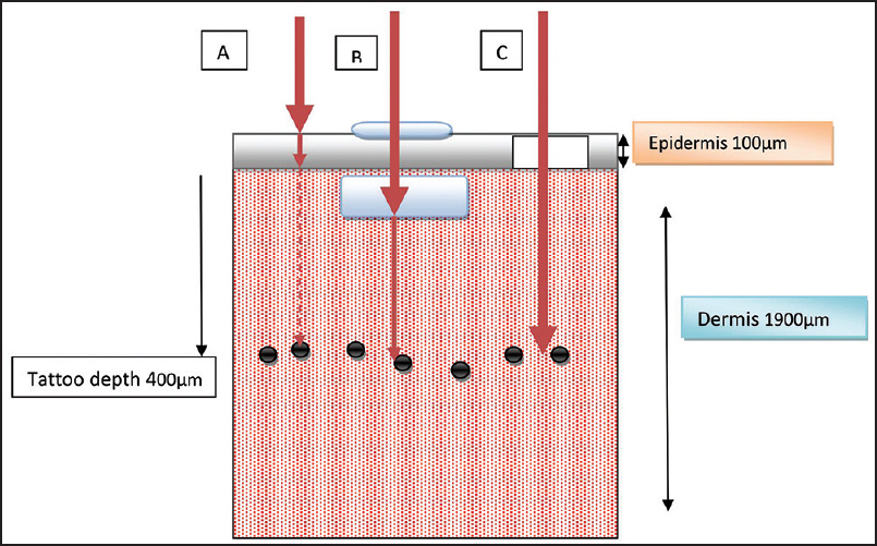 Figure 3: A schematic diagram highlighting techniques to enhance tattoo removal. (a) The laser beam gets attenuated by the epidermis and the dermis due to epidermal and dermal scattering (b) Topically applied clearing agents can help in reducing the dermal scatter and enhance results. They can be placed either on the skin or intradermally (c) Epidermal ablation is another effective tool for enhancing results by eliminating epidermal scatter