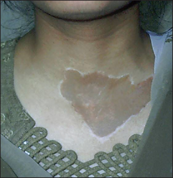 Figure 1: Colour mismatch of a skin-coloured tattoo on the exposed area used as a camouflage technique for vitiligo