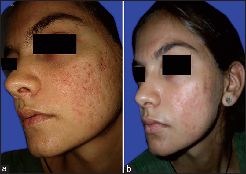10 Glycolic Acid Peel Side Effects Efficacy Of Modified