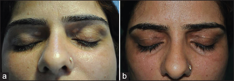 Ultrapulse carbon dioxide laser ablation of xanthelasma palpebrarum