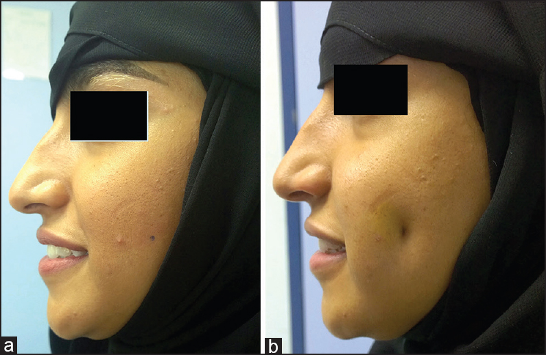 Figure 4: Patient with long face with dimple on left side (a) pre (b) post