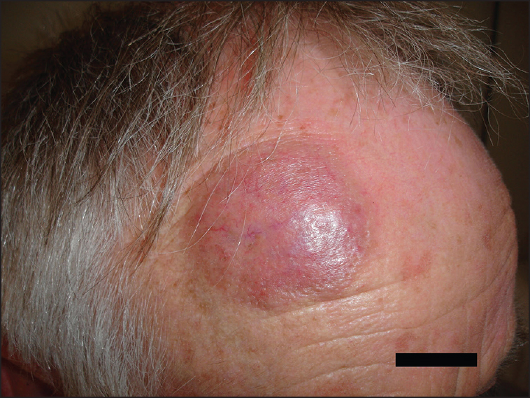 treatment of laser resistant granuloma faciale with