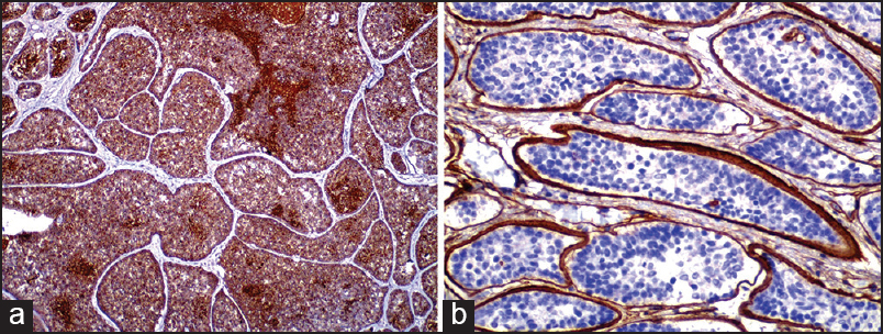 Figure 3: (a) CK 7 was positive in central epithelial cells. (b) Collagen IV positivity in peripheral hyaline basement membrane material