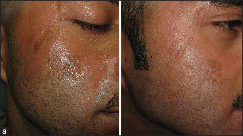 Efficacy and safety of fractional CO 2 laser resurfacing in