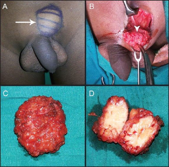 cancer swelling of penis