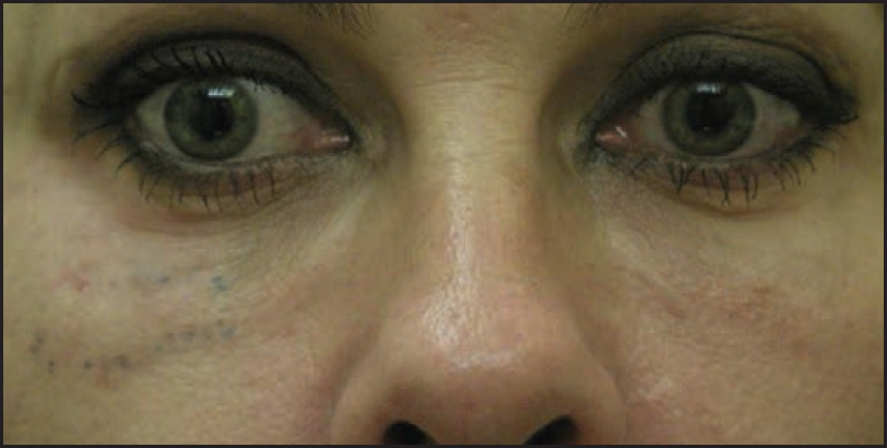 Managing complications of fillers: Rare and not-so-rare