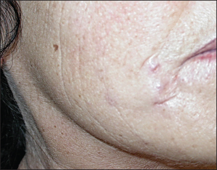 Figure 6: Female patient after injection of acrylic gel (Dermalive)