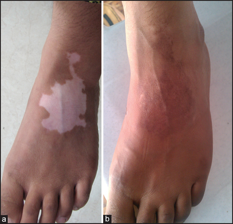 Figure 1: (a) Vitiligo on