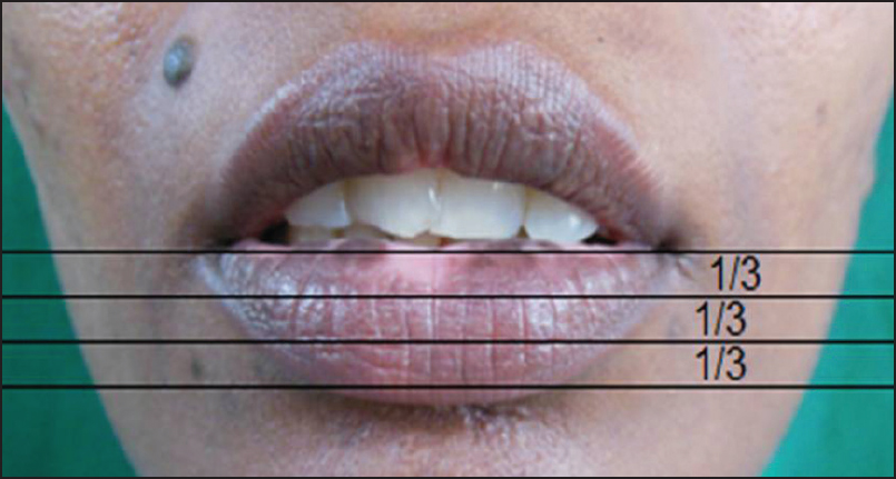 A study of the outcome of primary excision and closure technique in