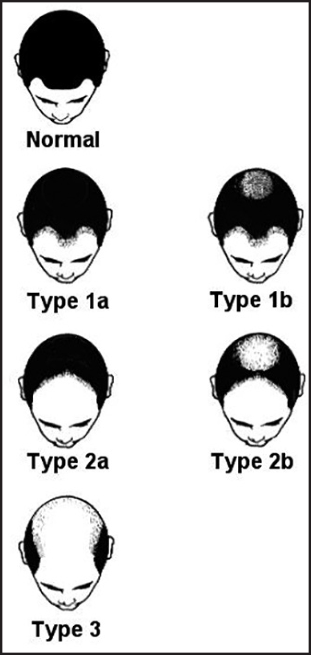 Figure 4: Bouhanna classification of hair loss among European Caucasians<sup>[6]</sup>
