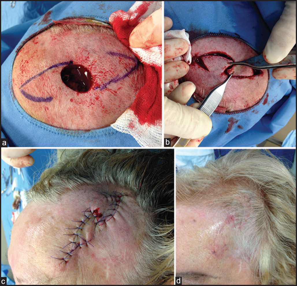 Figure 1: (a) Frontal/temporal scalp defect after excision of basal cell carcinoma and design of double hatchet flap, (b) double hatchet flap incision and mobilization, (c) view of suture, (d) result after a month
