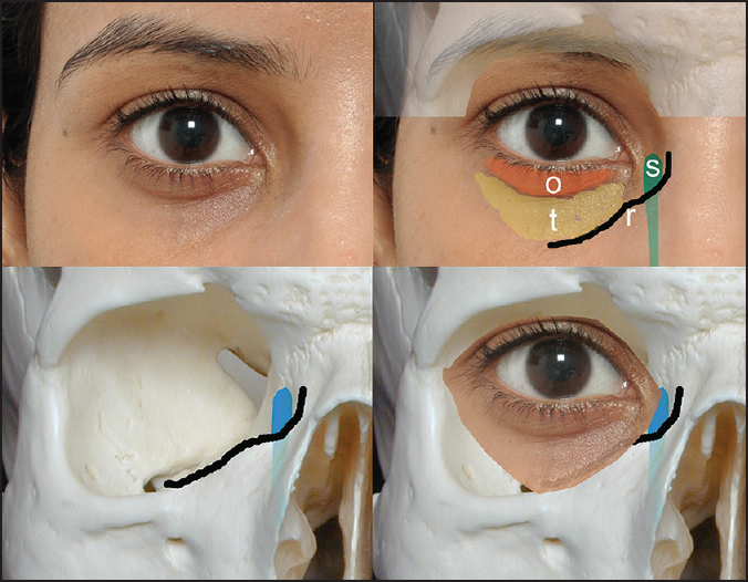 Figure 1: The right eye demonstrating the tear trough anatomy (top left). Note the orbicularis roll (o) and the tear trough (t) in relation to the inferomedial orbital rim (r). The lacrimal sac (s) lies medially (bottom left and right), continuing below the orbital rim as the nasolacrimal duct. The 'tear trough' therefore does not lie over the orbital rim, but lateral to it