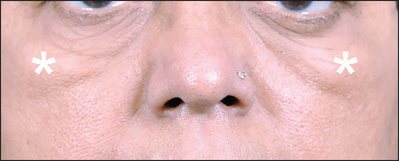 Figure 5: Figure showing the triangular malar mound in a middle-aged person. It is bound supero-medially by the orbital rim hollow, and infero-medially by the zygomatic hollow
