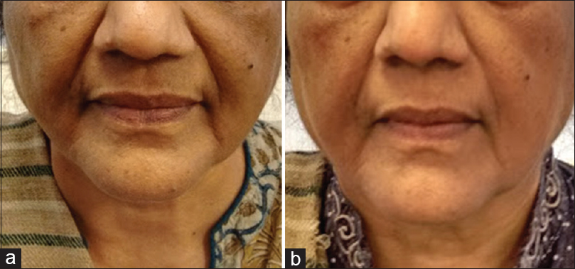 Figure 2: (a) Skin tightening with radiofrequency and ultrasound - before treatment. (b) Skin tightening with radiofrequency and ultrasound - after two sittings at 10 days interval