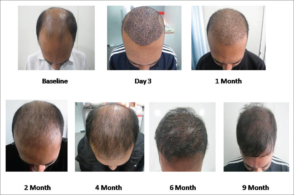 Figure 9: Hair growth with platelet-rich plasma treatment with comparative images over a period of 9 months. At 1 month interval more than 75% transplanted hair is in growing phase. At 2 months, there is relative thinning due to delayed catagen and breakage of hair strands above surface of skin. Images at 4 and 6 months show more density and length of transplanted hair as compared to non-platelet-rich plasma