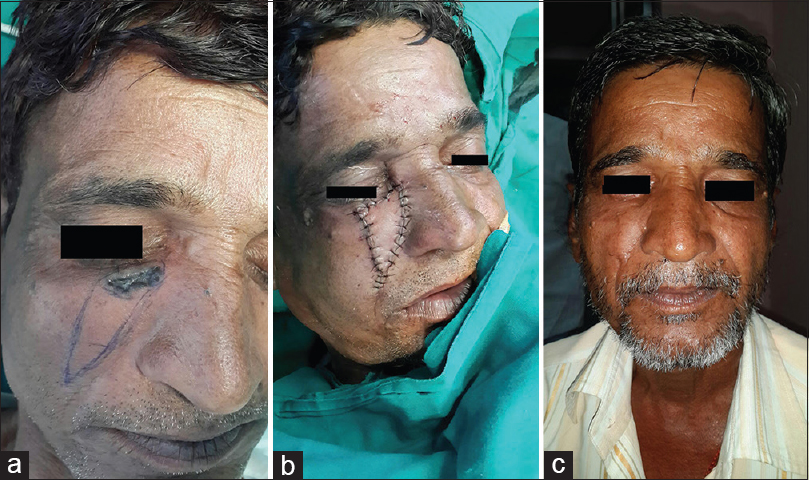 Figure 2: (a) V-Y advancement patient two - pre-operative photograph, (b) V-Y advancement patient two - immediate post-operative photograph, (c) V-Y advancement patient two - late post-operative photograph