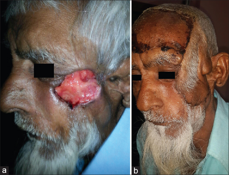 Figure 5: (a) Standard forehead flap - pre-operative photograph, (b) standard forehead flap - post-operative photograph