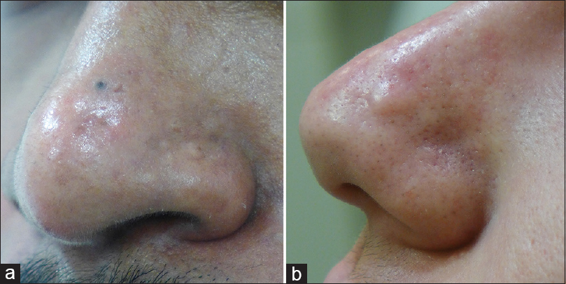 Papular Acne Scars Of The Nose And Chin An Under Recognised Variant Of Acne Scarring Ali Fr Kirk M Madan V J Cutan Aesthet Surg