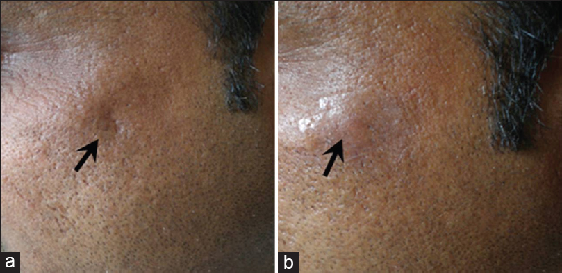 Figure 5: Traumatic scar on left upper cheek (a) and after (b) dermal grafting
