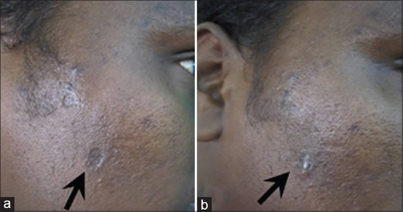 Figure 7: (a and b) Varicella scar in the right cheek