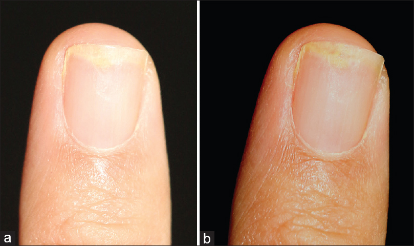 Figure 1 Effect Of Flash On Nails A Without Diffusion B After Correction