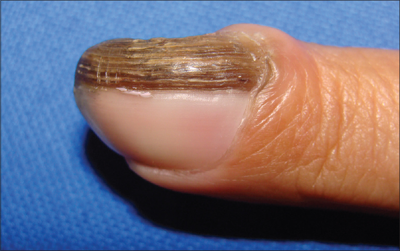 Figure 1: Clinical features of the left second finger nail