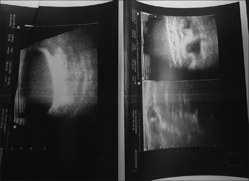 Figure 2: Ultrasound showing cystic space in the right breast