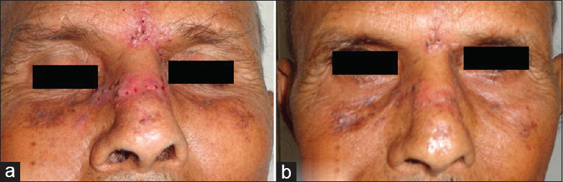 Figure 3: (a) Seventh post-operative day picture after suture removal. (b) Picture after 2 months