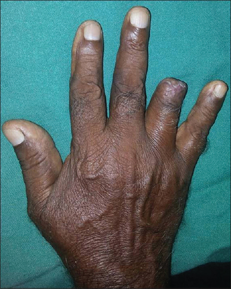 Figure 2: Excision of the tumour with disarticulation of the distal interphalangeal joint.
