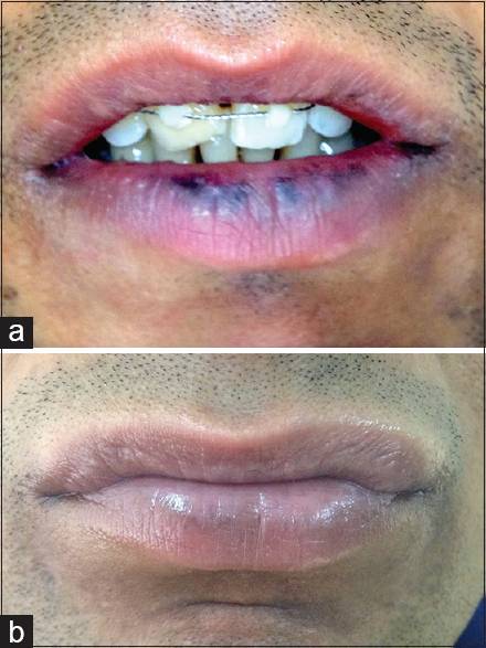 Figure 1: (a) Smoker's melanosis on lips. (b) Clearance of pigmentation after single session of 1064 nm Q-switched neodymium-doped yttrium aluminium garnet laser