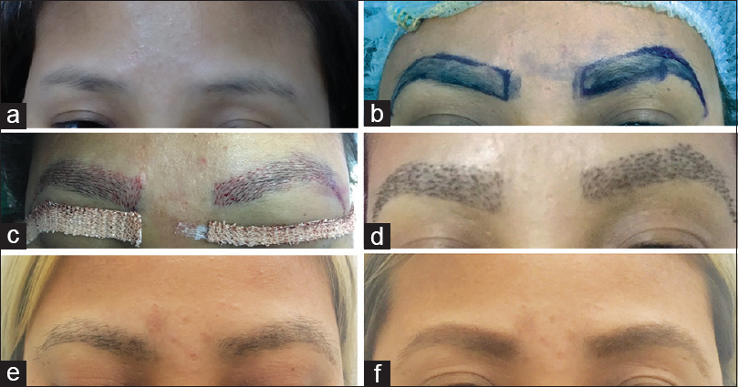 The Science And Art Of Eyebrow Transplantation By Follicular Unit