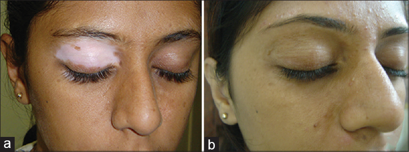 Figure 4: (a) Pre-operative picture. (b) Post-operative picture