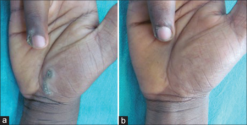 Safety and efficacy of intralesional vitamin D3 in cutaneous warts