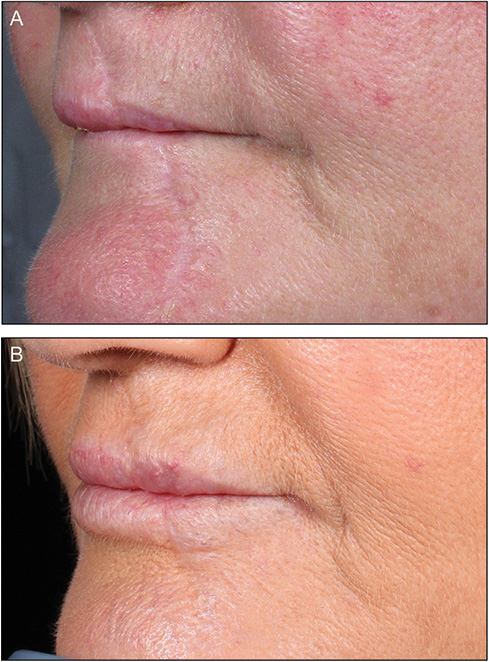 Use of a hyaluronic acid soft-tissue filler to correct
