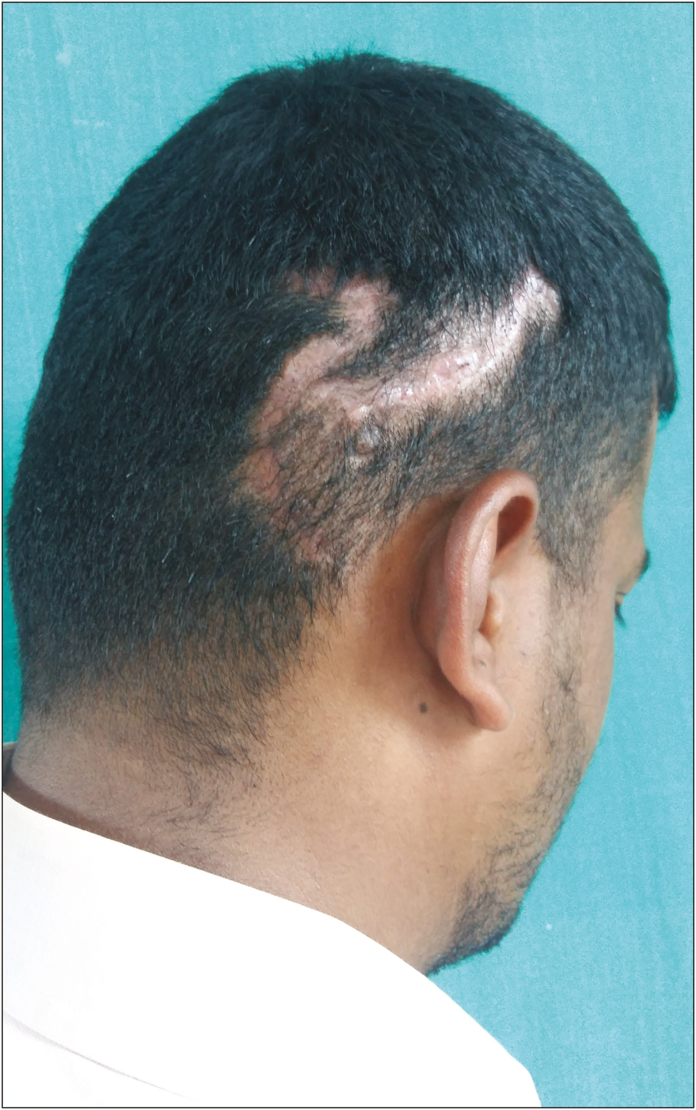 Figure 5: Scar with well-oriented hairs that will cover once they are grown (hairs being trimmed to make scar visible)