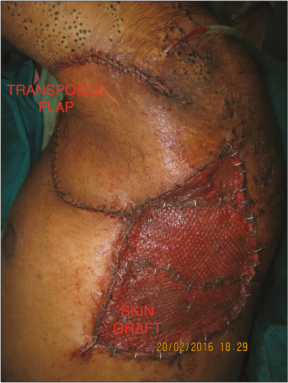 Figure 7: Axillary defect was resurfaced with a transposition flap from left parascapular region and the donor site skin grafted