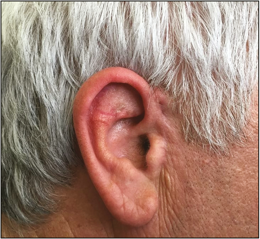 Figure 7: Ear aspect after 3 months of the surgery