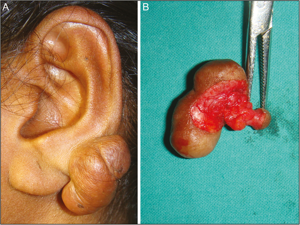 Medknow Publications: Publisher of peer reviewed scholarly ...Earlobe Keloid Removal