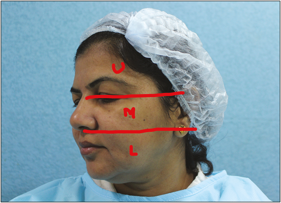 Simplifying injectables for volumetric rejuvenation of face