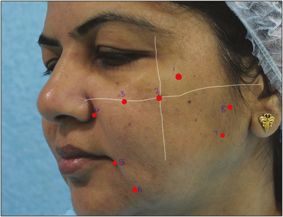 Simplifying injectables for volumetric rejuvenation of face Arsiwala