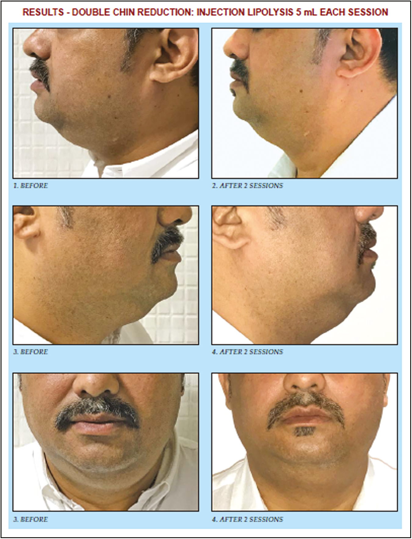 Fat busters: Lipolysis for face and neck Talathi A, Talathi P - J