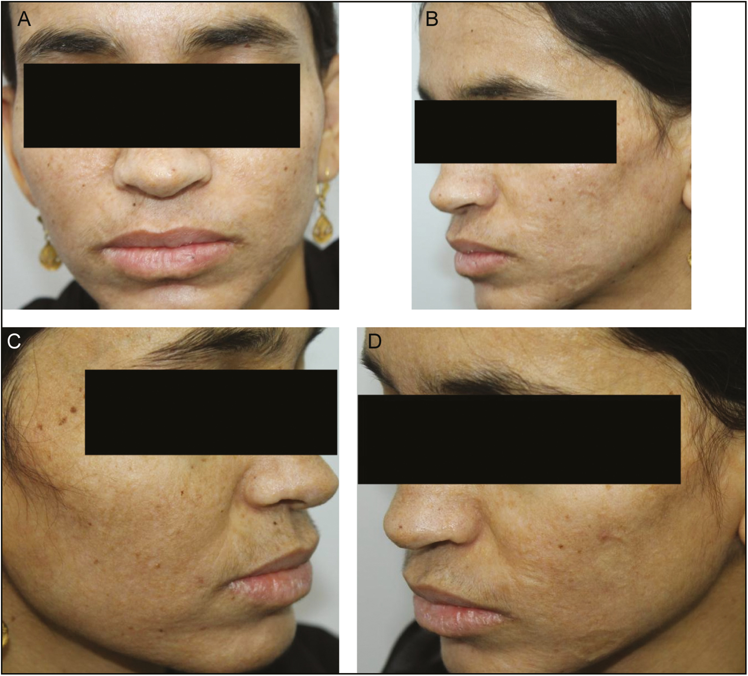 Figure 2: Photographs taken after laser treatment. There is marked improvement in the skin texture and reduction in the hyaline deposits seen over the face