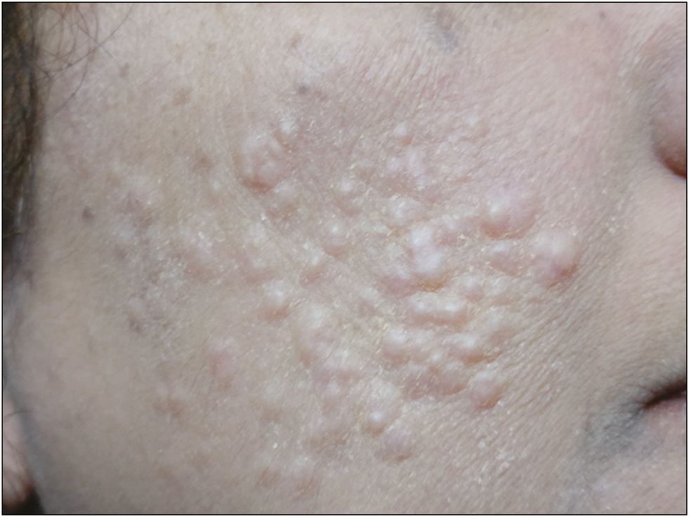 Figure 1: Skin-colored papules on cheeks