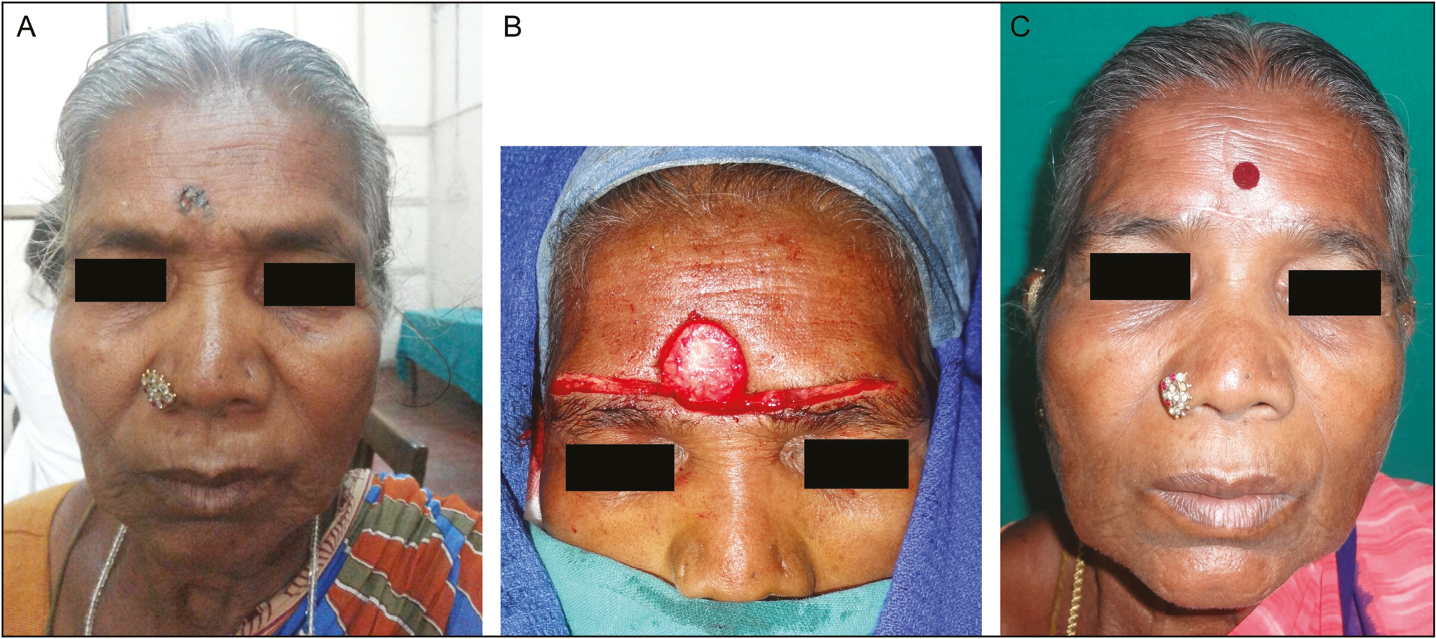 Figure 10: (A) BCC of forehead. (B) Post-excision defect over forehead and elevation of advancement flaps. (C) Bilateral advancement flap late postoperative status