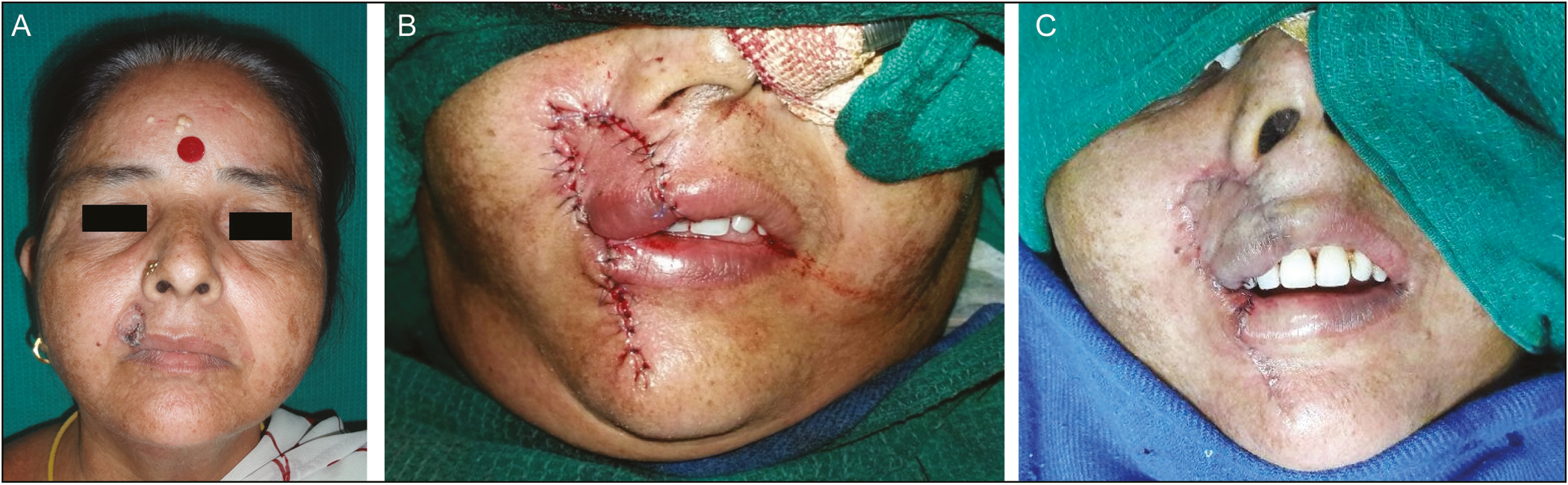 Figure 11: (A) BCC of upper lip right side. (B) Reconstruction using Abbe flap. (C) Abbe flap after division and inset