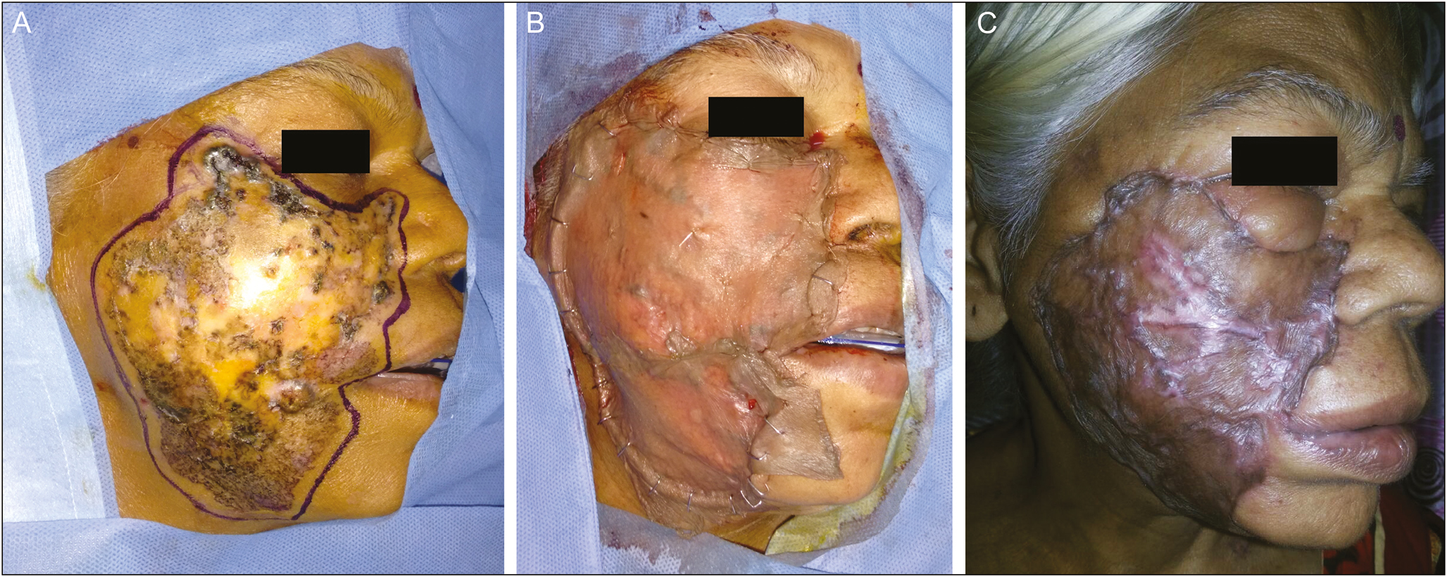 Figure 13: (A) Giant BCC involving right cheek. (B) SSG applied over the cheek defect after excision of BCC. (C) Hypertrophic scarring of the SSG