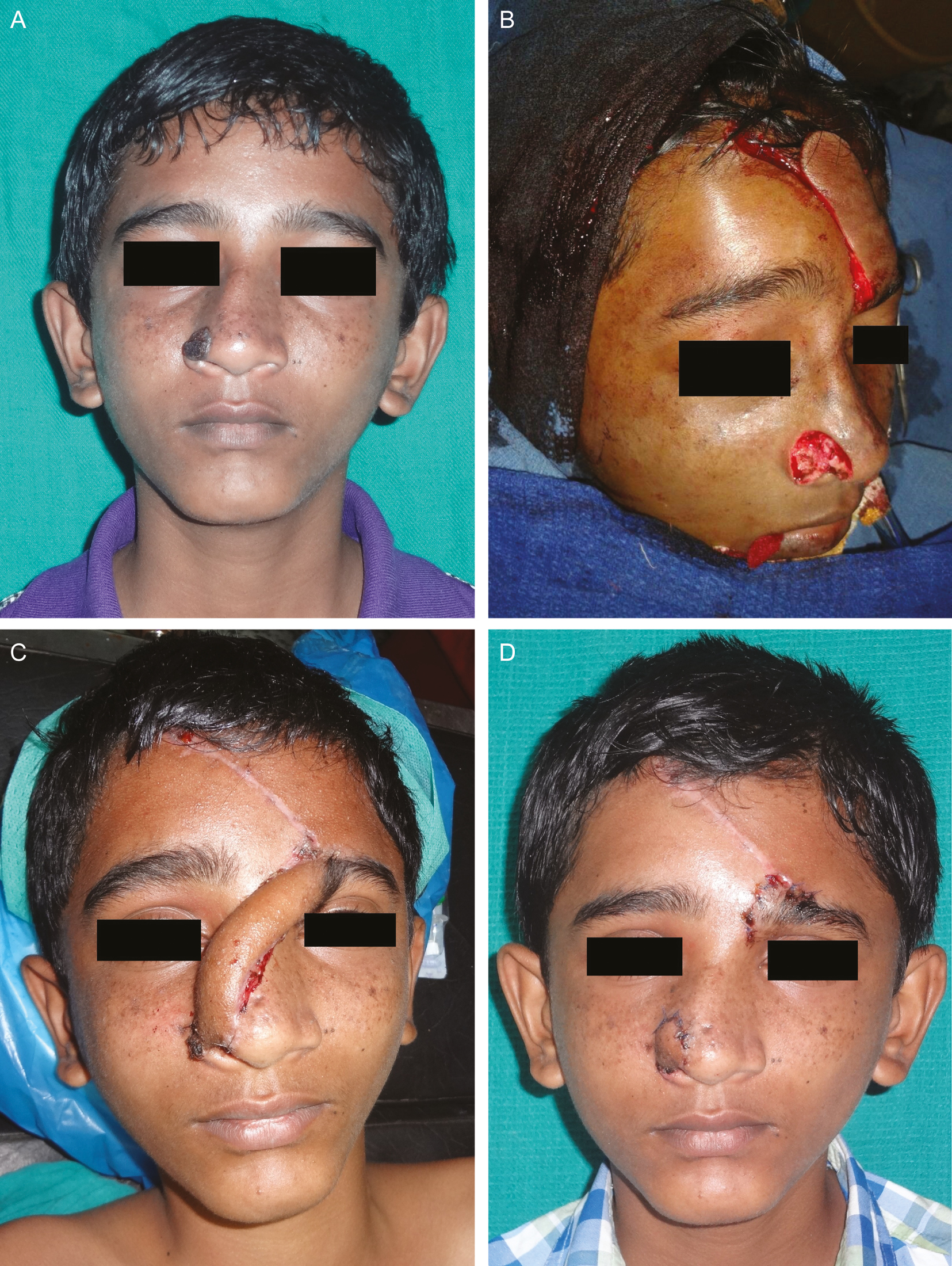 Figure 5: (A) BCC of nose. (B) Post-excision defect and elevation of paramedian forehead flap. (C) Reconstruction using paramedian forehead flap. (D) Paramedian forehead flap reconstruction after division and inset