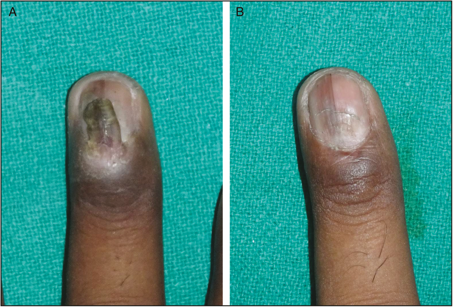 Figure 1: (A) A deformed ectopic nail arising over a normal nail plate. It was arising from a well-formed pocket within the PNF. The ectopic nail shows discoloration and the underlying plate shows a slight depression. (B) Postoperative outcome at the end of 8 weeks, with a normal but slightly retracted PNF. Note the slow normalization of the nail plate curvature